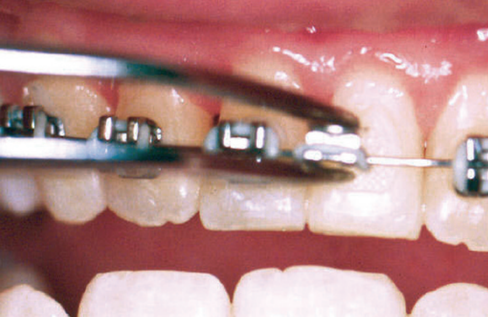 Loos Brackets, Wires or Bands