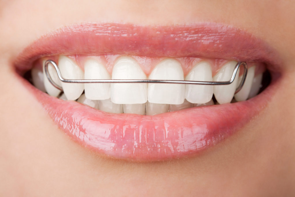 LOOSE, TIGHT OR BROKEN RETAINERS​